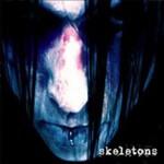 Wednesday 13, Skeletons