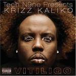 Krizz Kaliko, Vitiligo